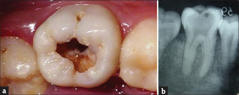 Figure 1: (a) Occlusal view of the mandibular left first molar. (b) Radiograph shows profound caries extending to the pulp space with no periapical radiolucency