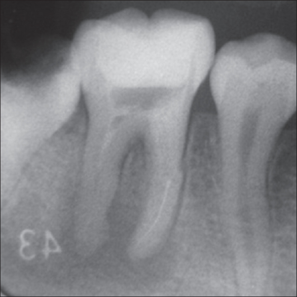 Figure 2: The separated nickel–titanium instrument segment is shown in the middle third of the mesiolingual root canal
